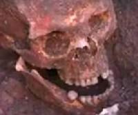Crâne de Richard III